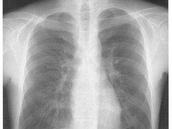 胸のレントゲン