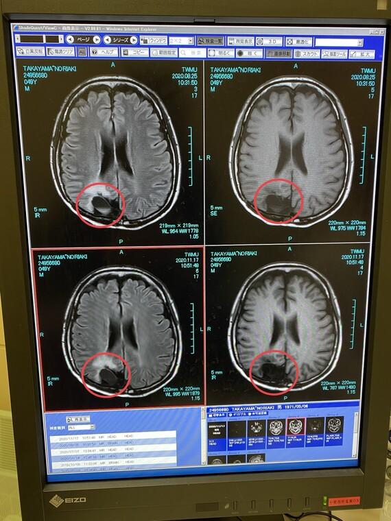 脳のMRI画像:水が溜まっている