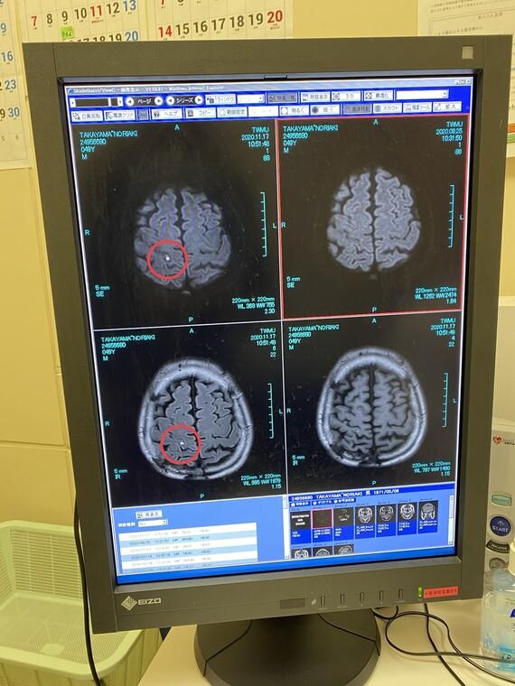 MRIに写った脳梗塞