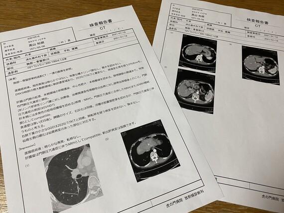 肝臓のCT検査の報告書