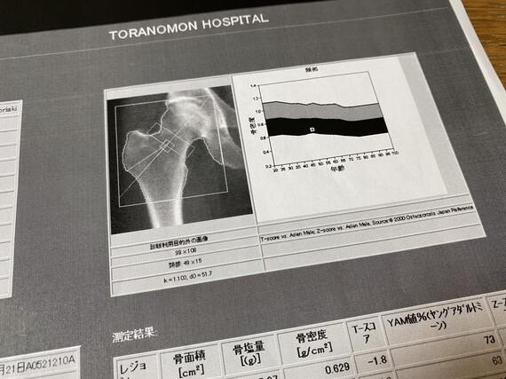 大腿骨骨密度検査