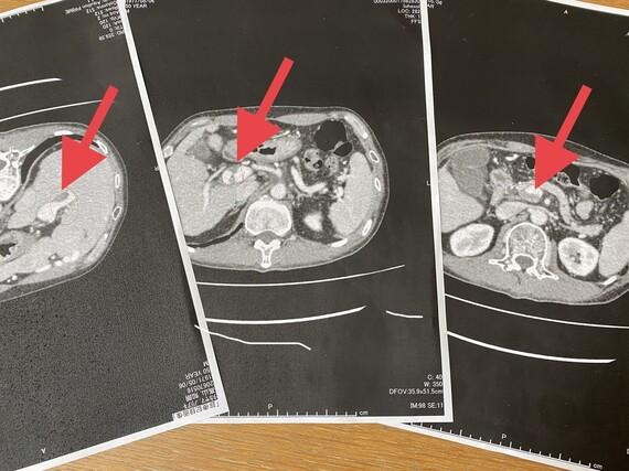 門脈血栓症 CT画像